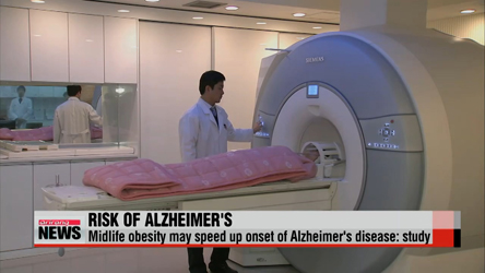 Midlife obesity may speed up Alzheimer's: study