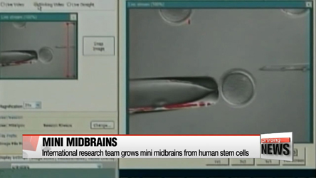 International research team grows mini midbrains from human stem cells