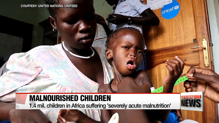 1.4 mil. children face severe malnutrition