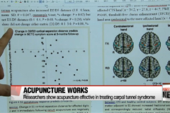Acupuncture proves effective in treating carpal tunnel syndrome