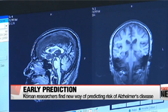 Korean researchers find new way to predict risk of Alzheimer's disease