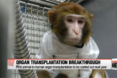 Pig organs to be used for transplants