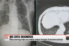Deep learning applied in radiology to accurately diagnose patients