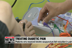 Electroacupuncture effective