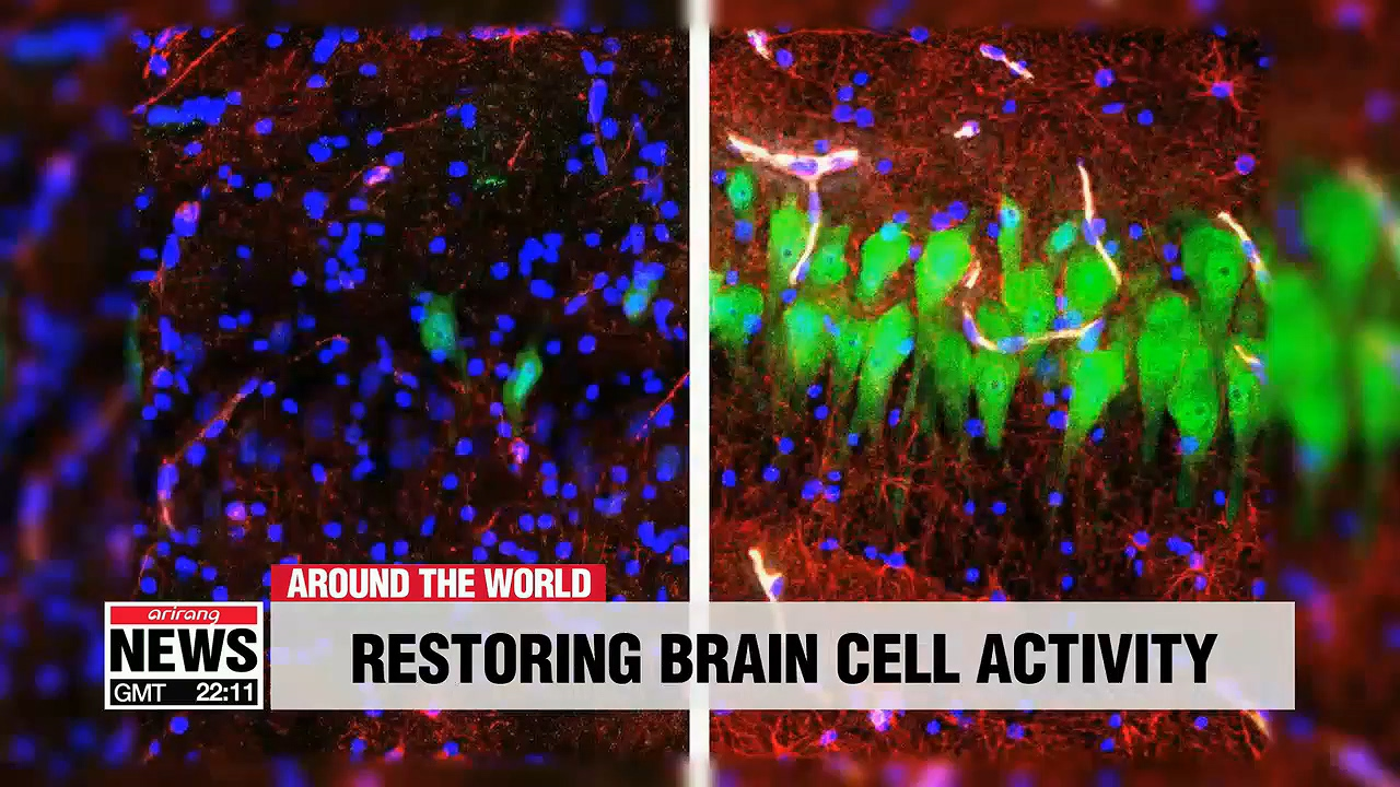 Researchers at Yale University restore brain cell activity of pigs killed hours earlier