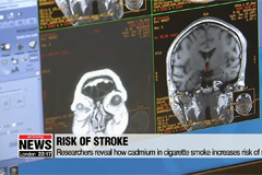 Korean researchers reveal how cigarette smoke, cadmium exposure increase risk of stroke