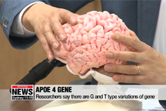 Variation in dementia-causing gene makes East Asians more susceptible to dementia