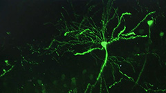 S. Korean research team finds enzyme that interferes with recovery from brain damage