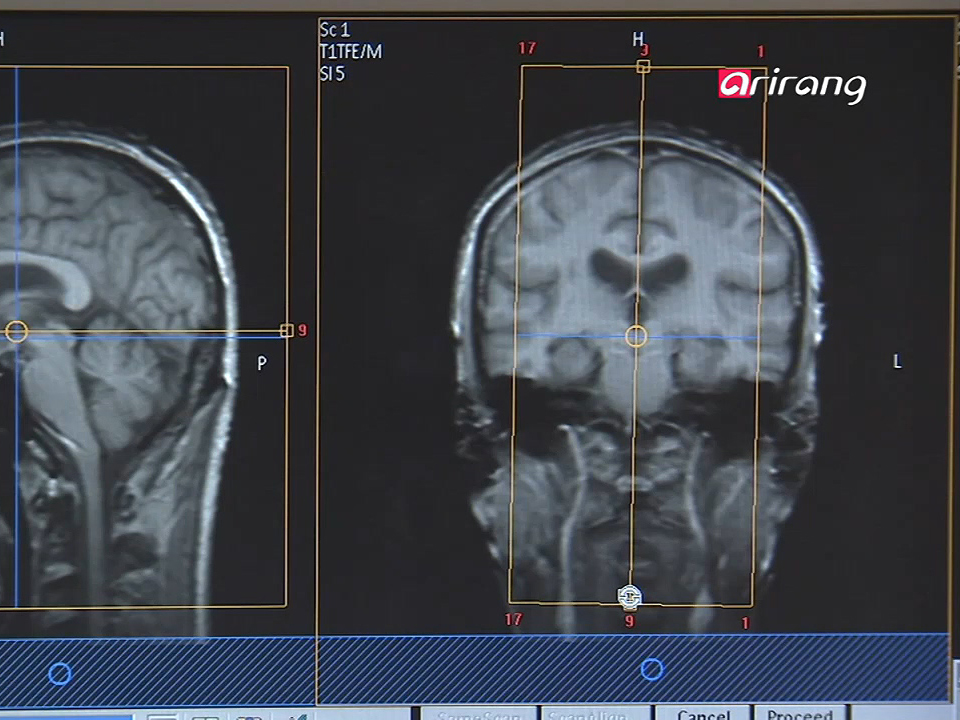 InfoScope Sensor That Makes Diagnoses in Brains Developed Ep16