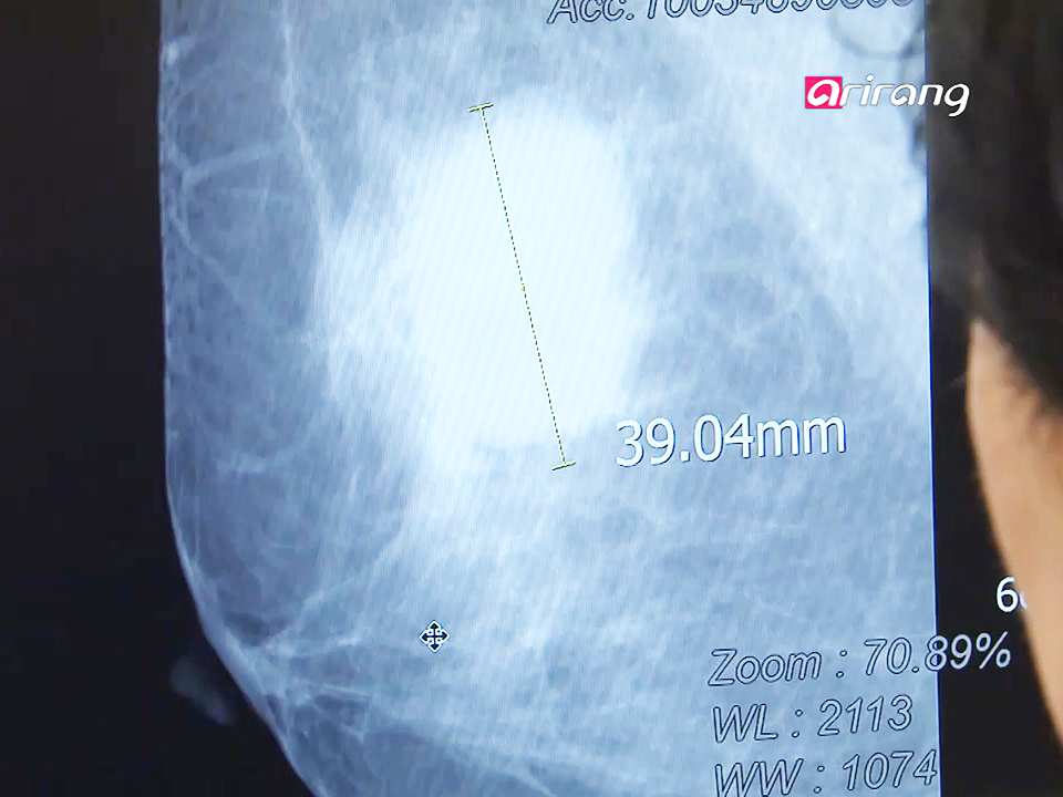 InfoScope Customized Treatment for Incurable Breast Cancer Ep17
