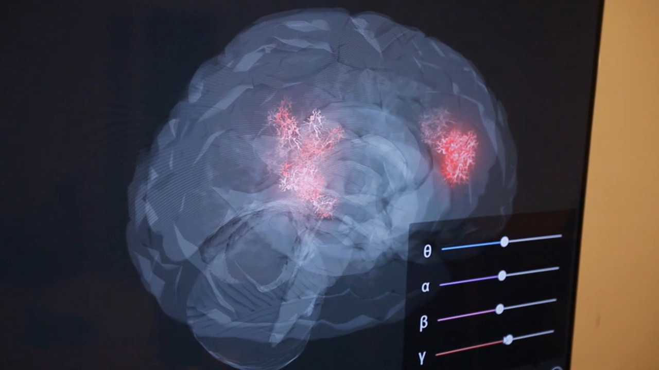 'EEG application technology' Gaining Popularity Through Mental Health Care