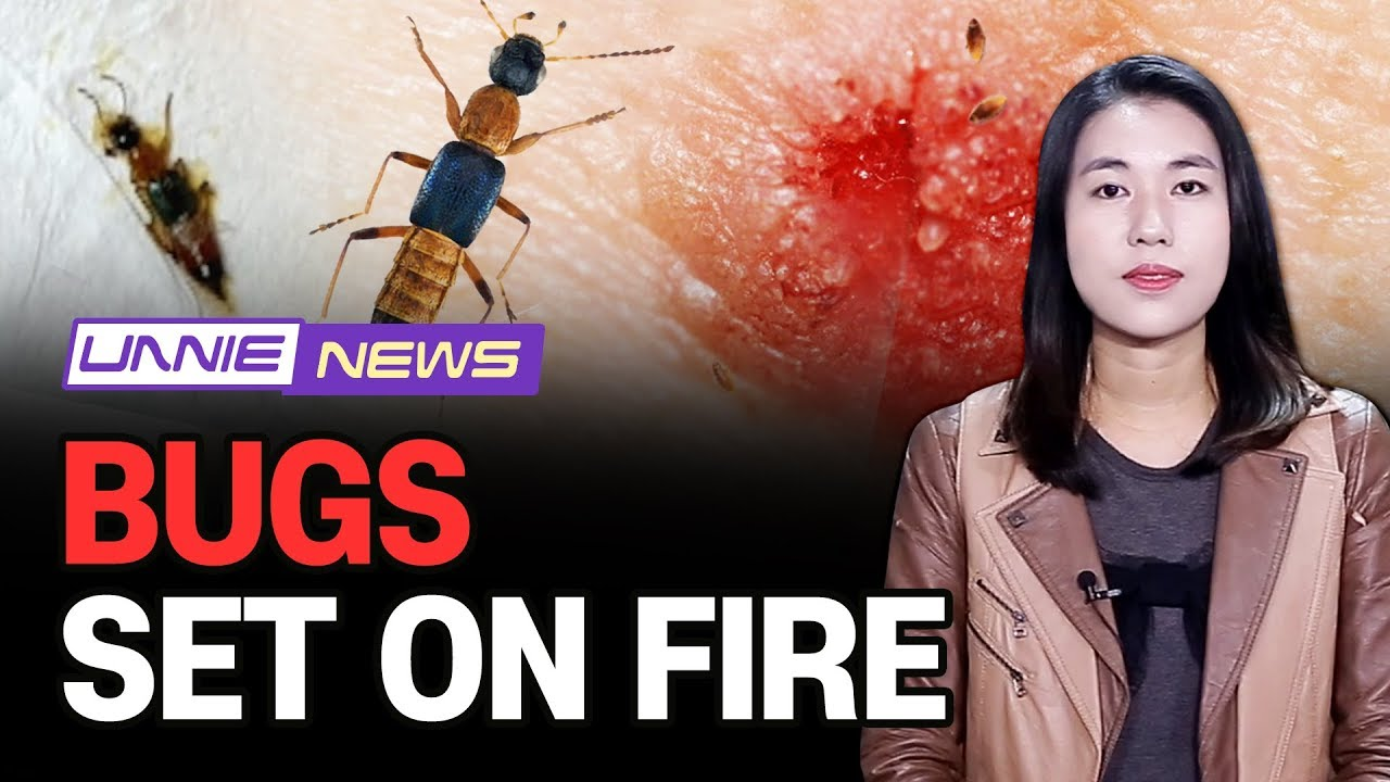 [UNNIE NEWS] Bugs set on fire